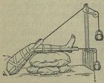 Рис. 2. Вытяжение бедра и голени силой привешенного груза.