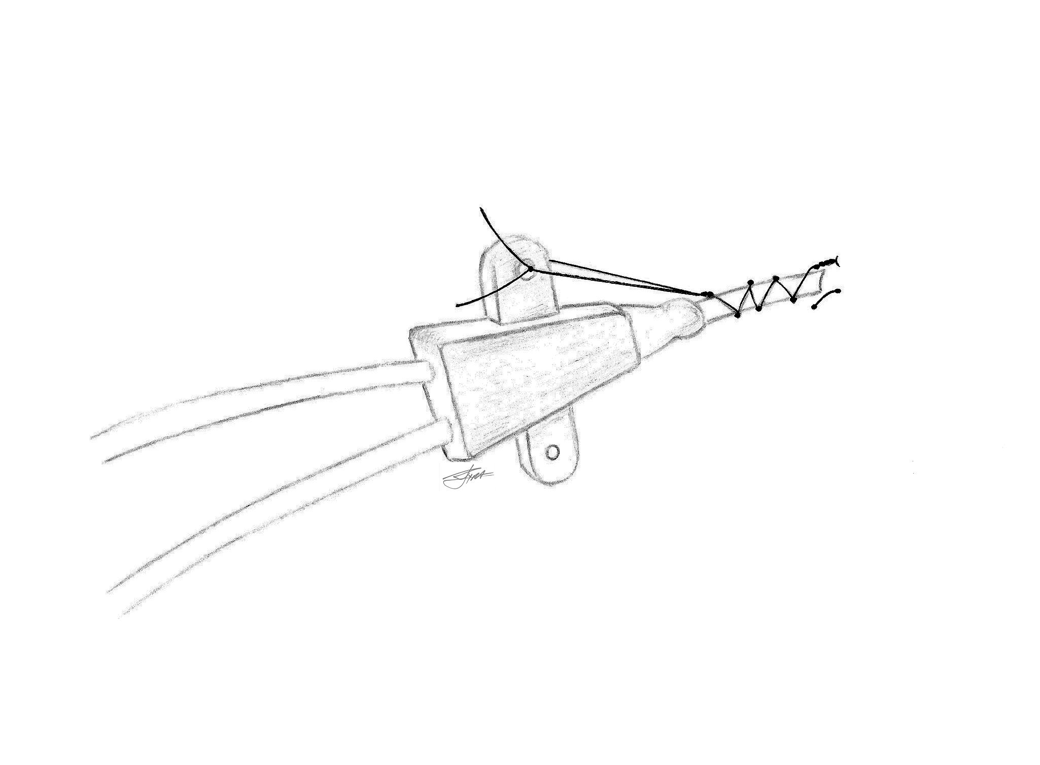file a technique for the fixation of central venous catheters Nosgoth Skins file a technique for the fixation of central venous catheters