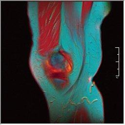 Knee MRI 0025 03 pdfs t1 t2 59f.jpg