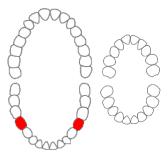 Mandibular second premolar