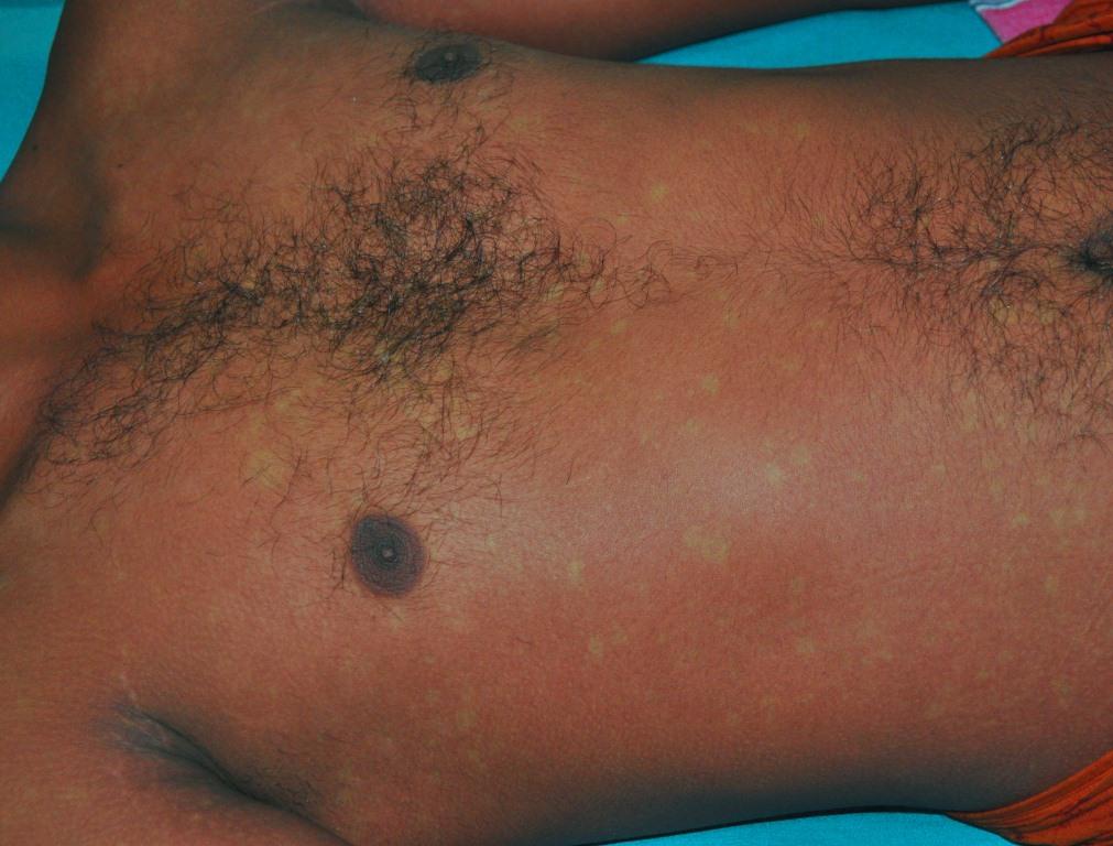 Лихорадка денге первые симптомы