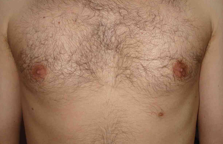 supernumerary nipple