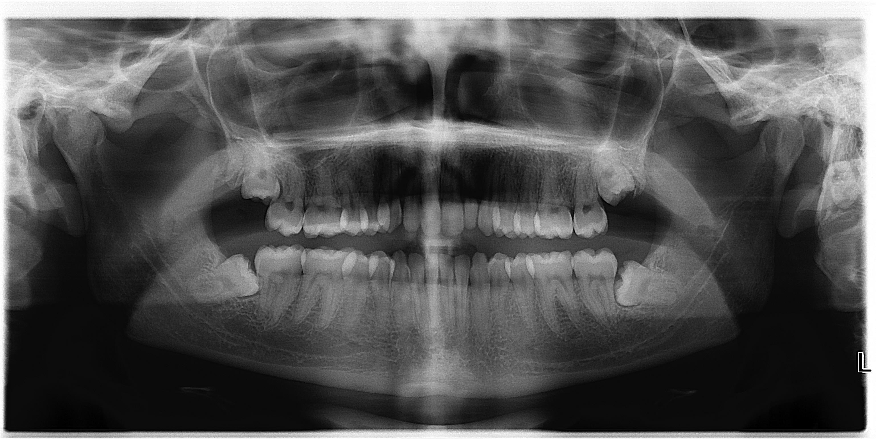 File:Asymptomatic disease free impacted wisdom teeth.jpg
