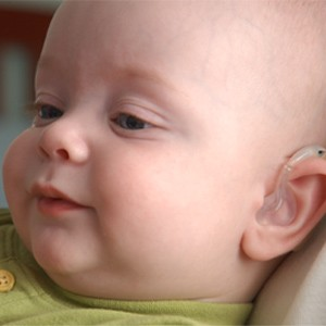Picture of an infant wearing a hearing aid