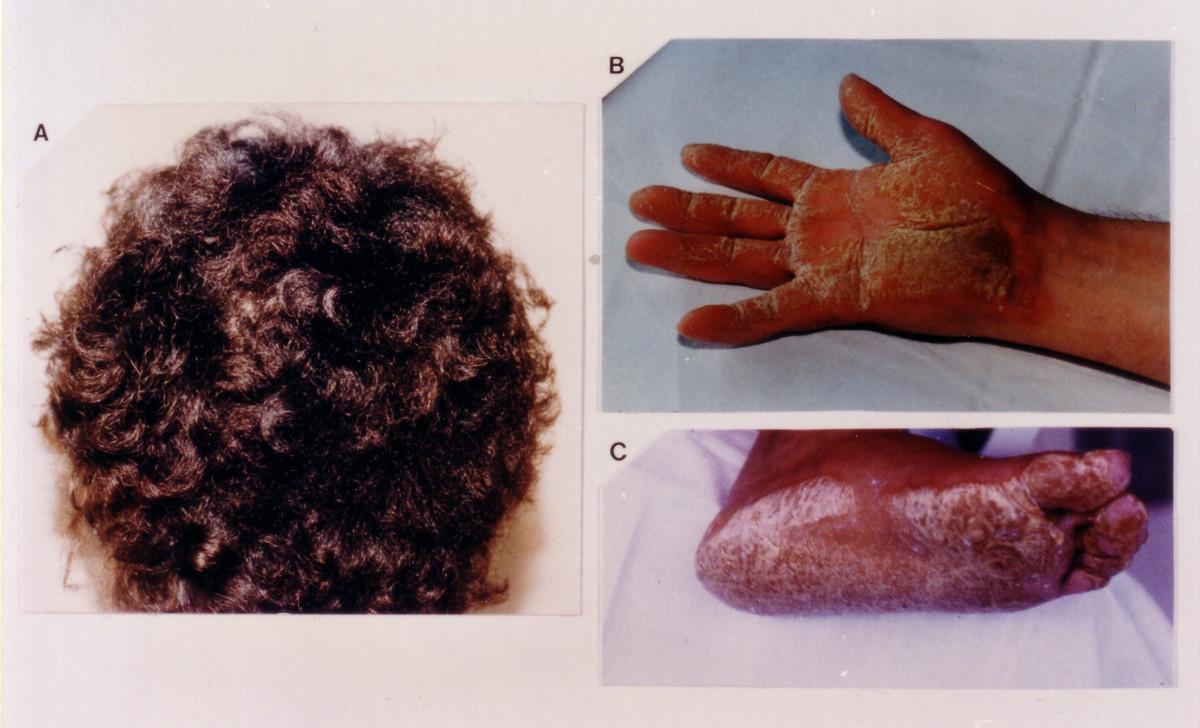 Αποτέλεσμα εικόνας για H Νόσος Νάξου