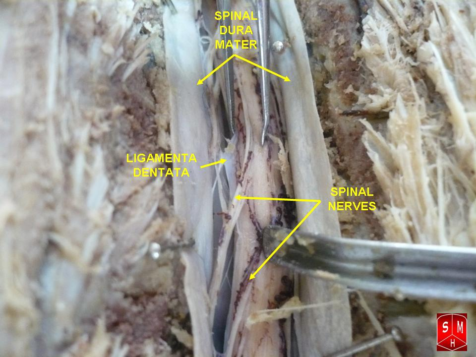 Filedissection Of Spinal Cordg Wikimedia Commons