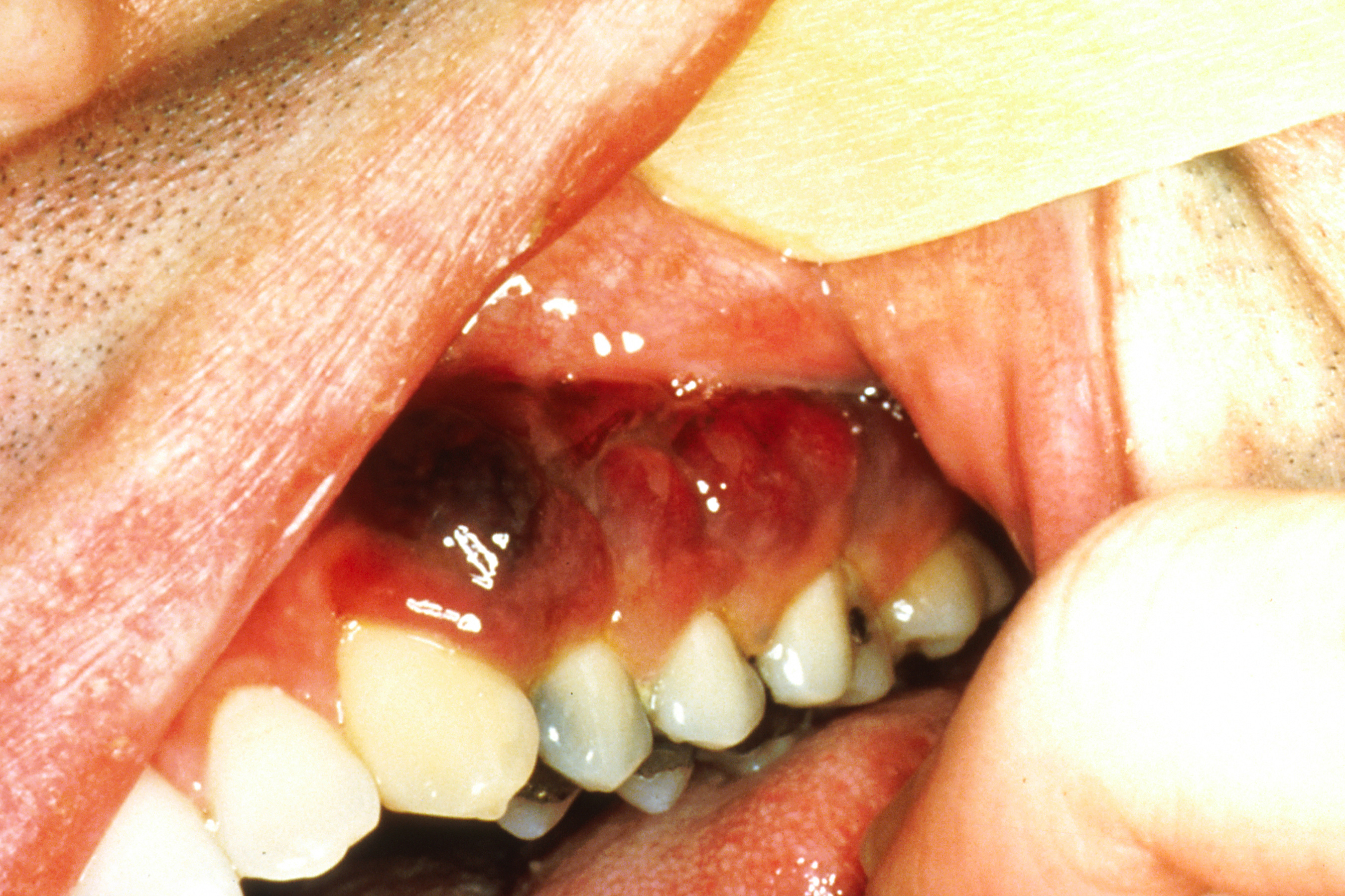 File:Intraoral Kaposi's sarcoma.jpg - Wikimedia Commons Kaposi Sarcoma Mouth