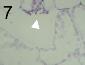 Mycosphaerella graminicola 7.png