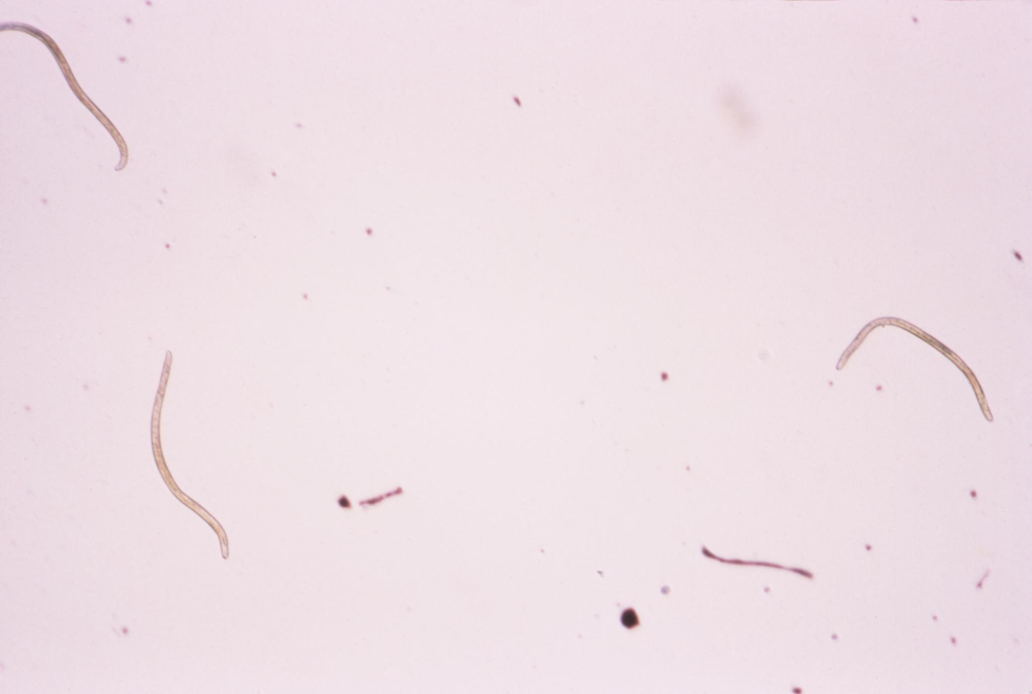 Onchocerca volvulus  atlas