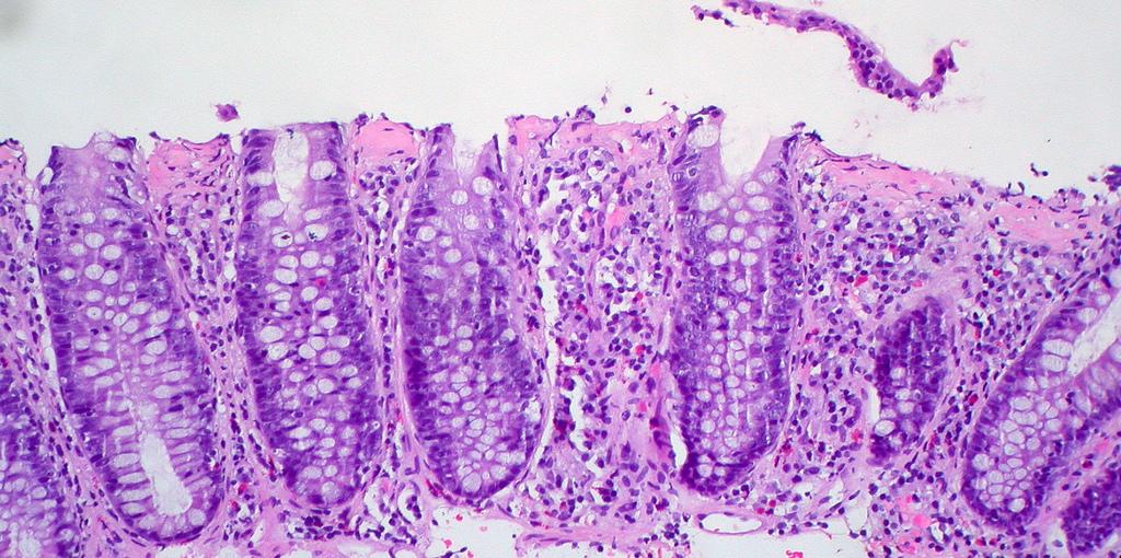 antibiotic induced colitis treatment