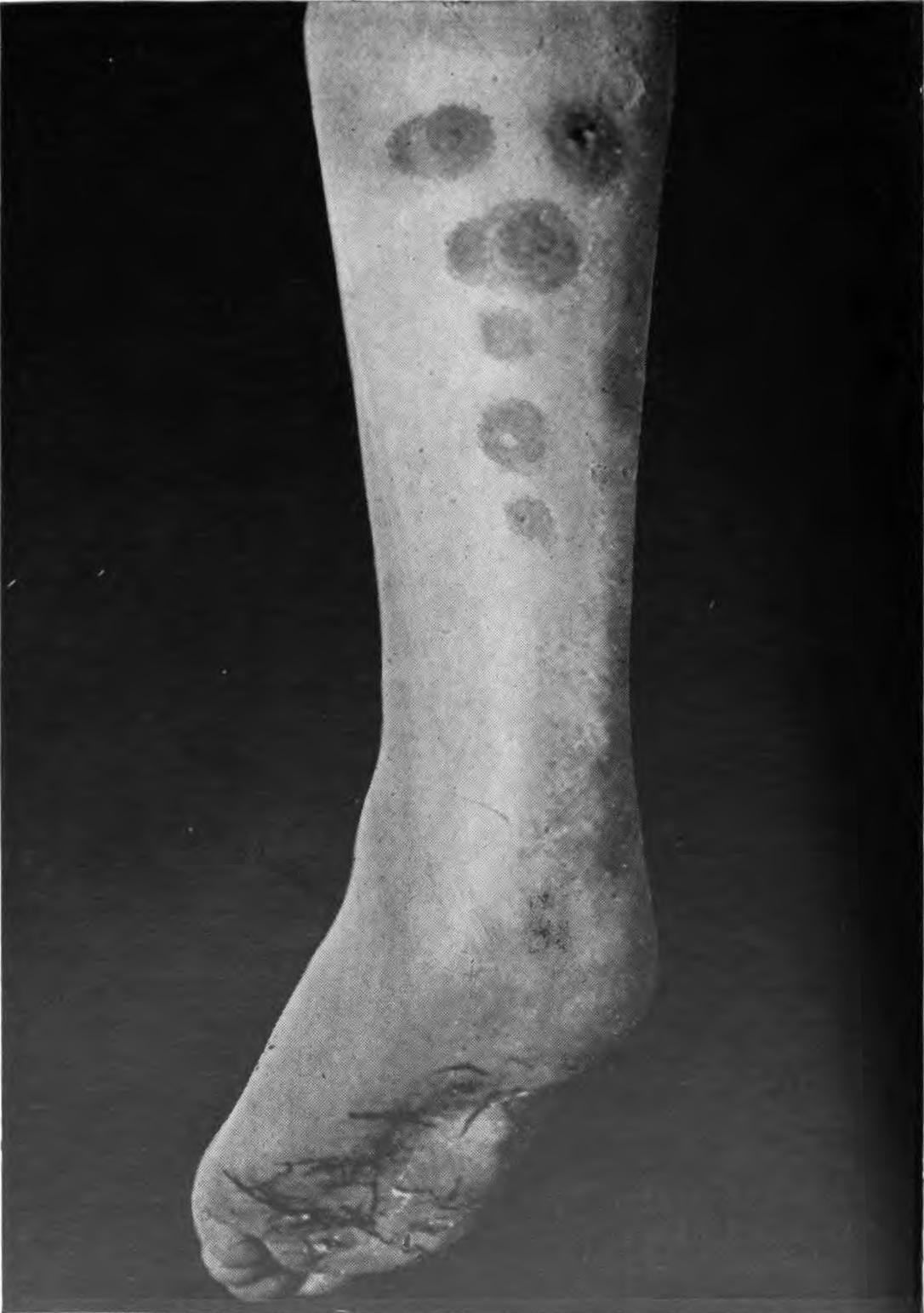 An introduction to dermatology (1905) erythema induratum 2.jpg