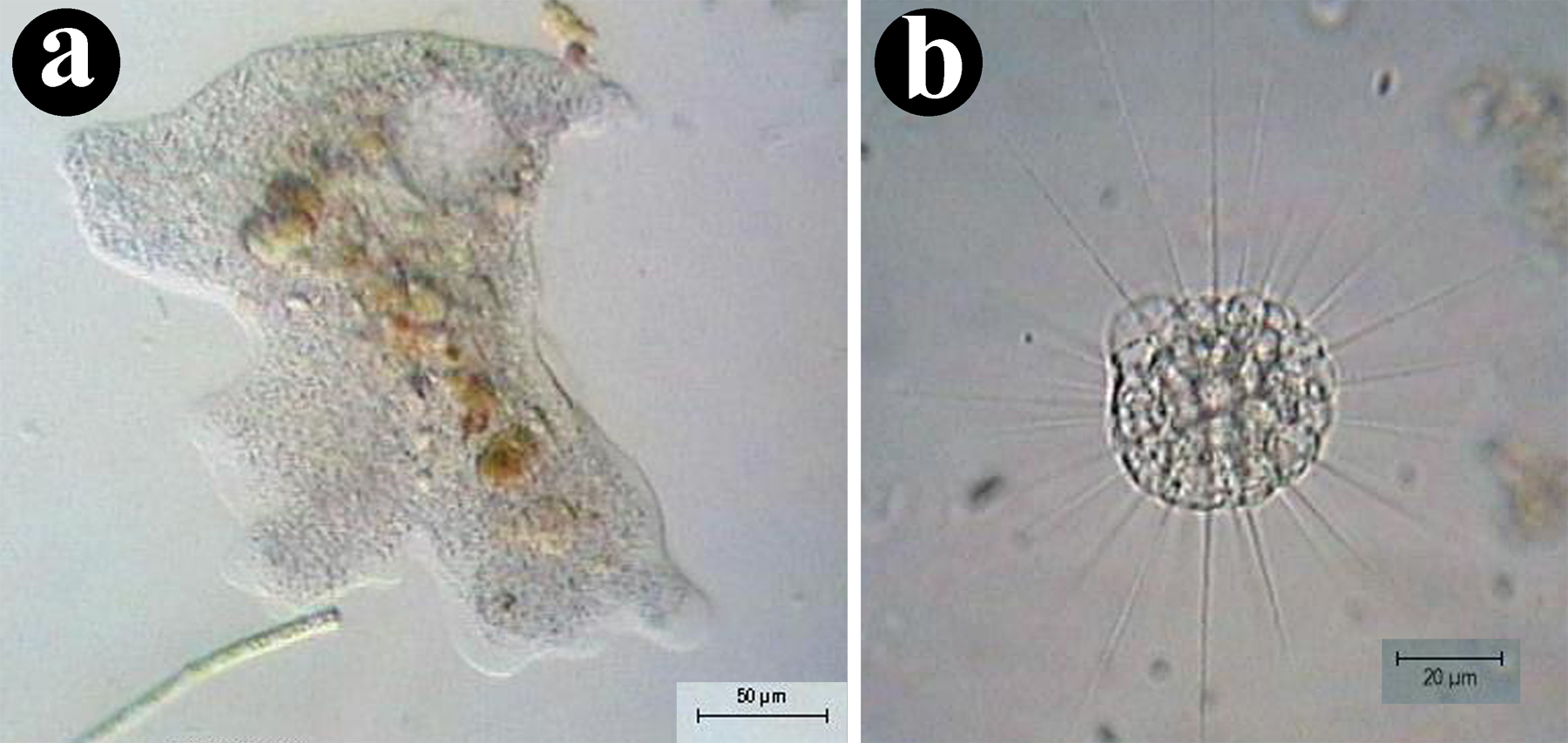 Figure 5: Asymmetrical and spherical body shapes. (a) An organism with an asymmetrical bauplan (Amoeba proteus an amoeba). (b) An organism with a spherical bauplan (Actinophrys sol a heliozoan.