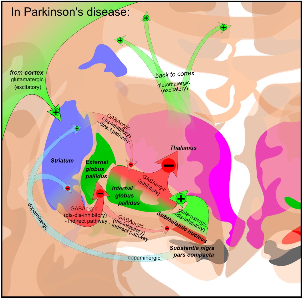 Parkinson: File:Basal Ganglia In Parkinson's Disease.png