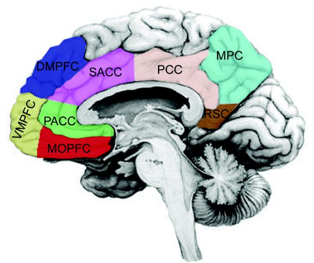 Dorsomedial prefrontal cortex - Wikipedia