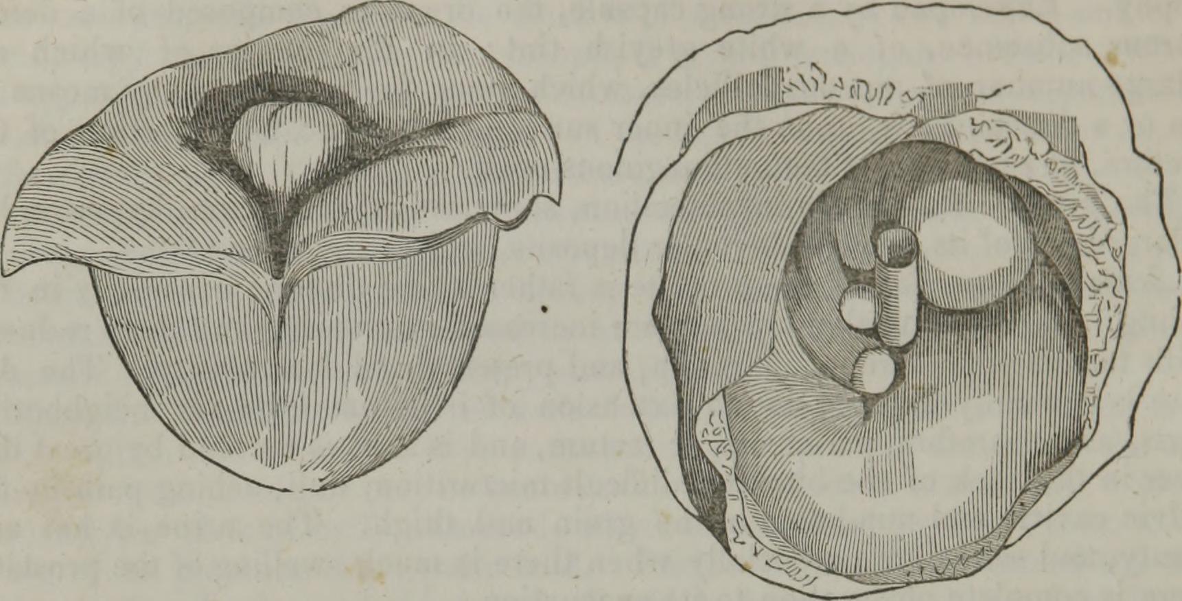 File:Elements of pathological anatomy (1845) (14596290760).jpg ...