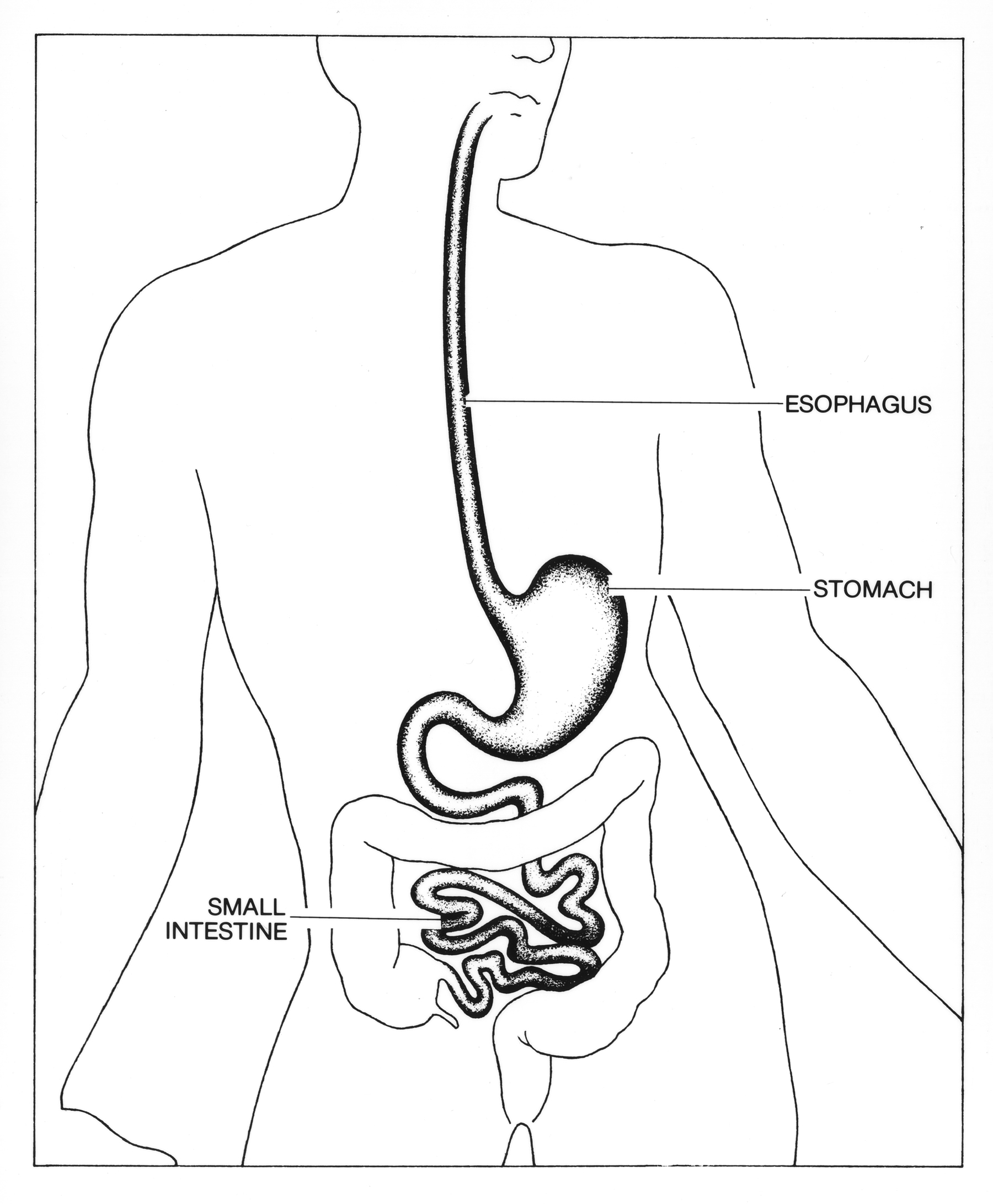 acid reflux  symptoms and treatments