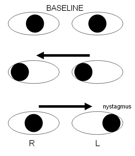 internuclear ophthalmoplegia