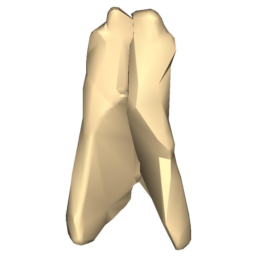 Filenasal Bone Close Up Posteriorg Wikimedia Commons