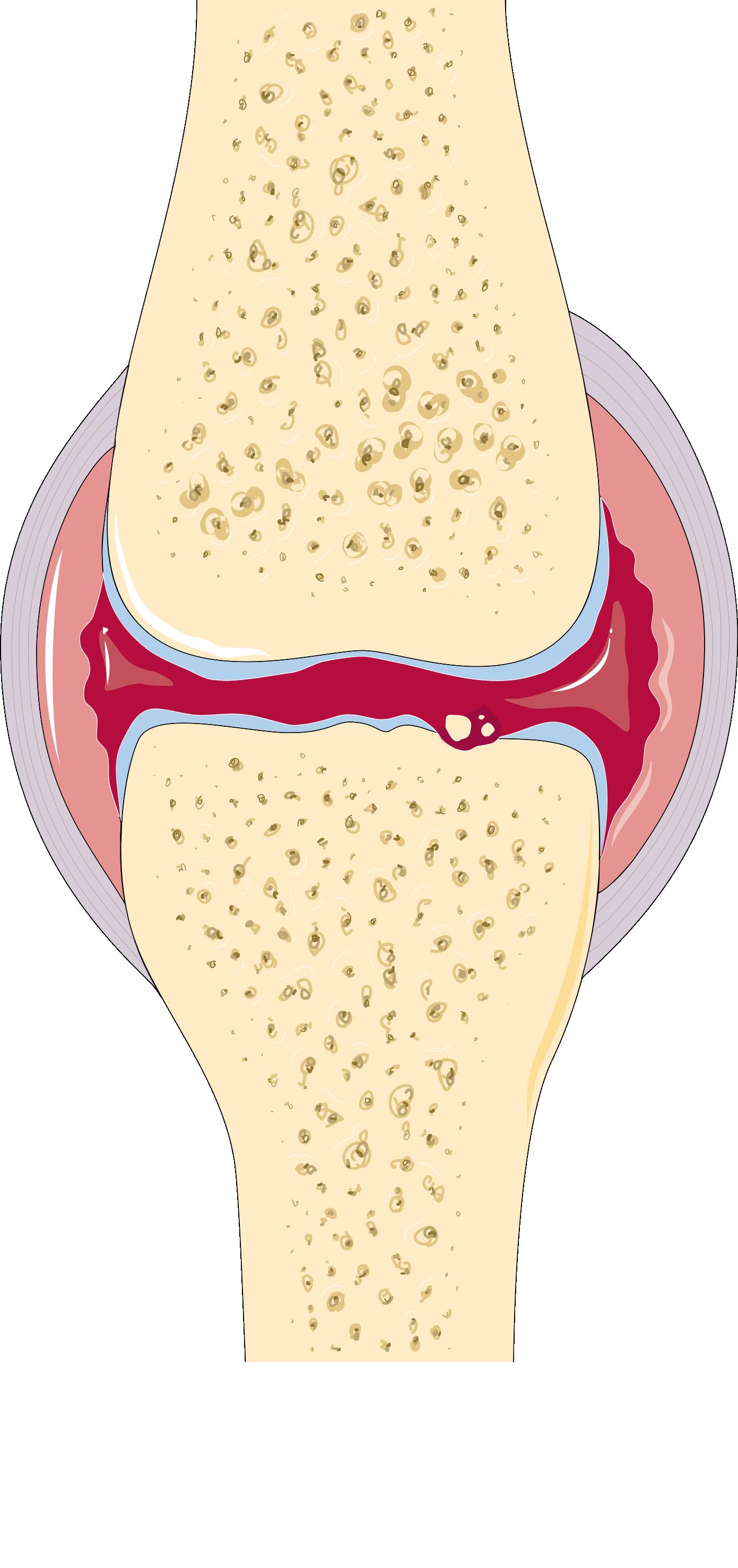 arthrite definitie)