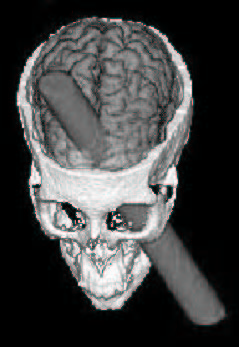 "The image ""http://upload.wikimedia.org/wikipedia/commons/b/b0/Phineas_Gage_CGI.jpg"" cannot be displayed, because it contains errors."