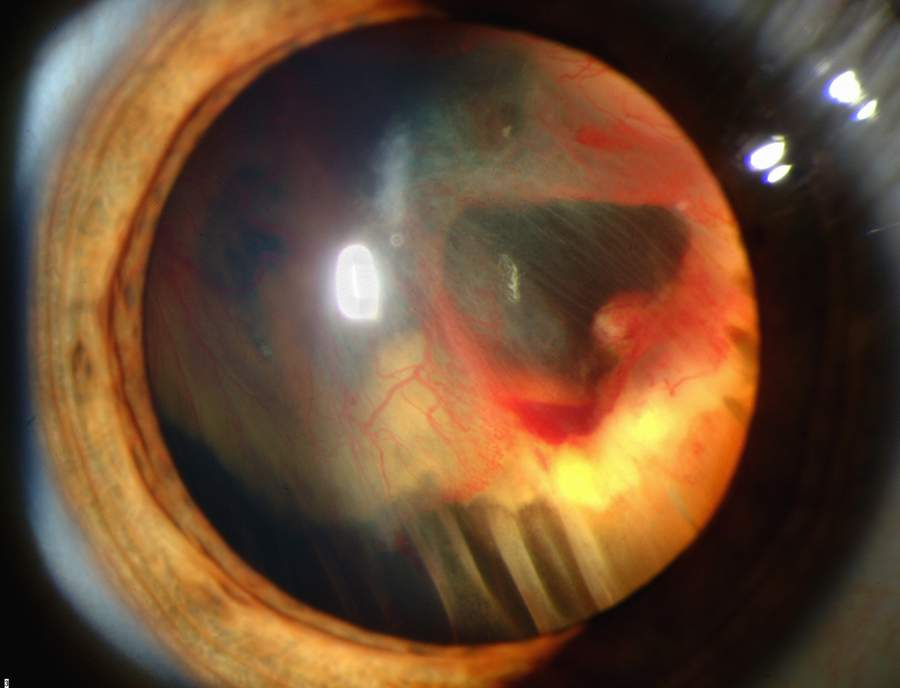 Slit lamp photograph showing retinal detachment in Von Hippel-Lindau disease EDA08.JPG