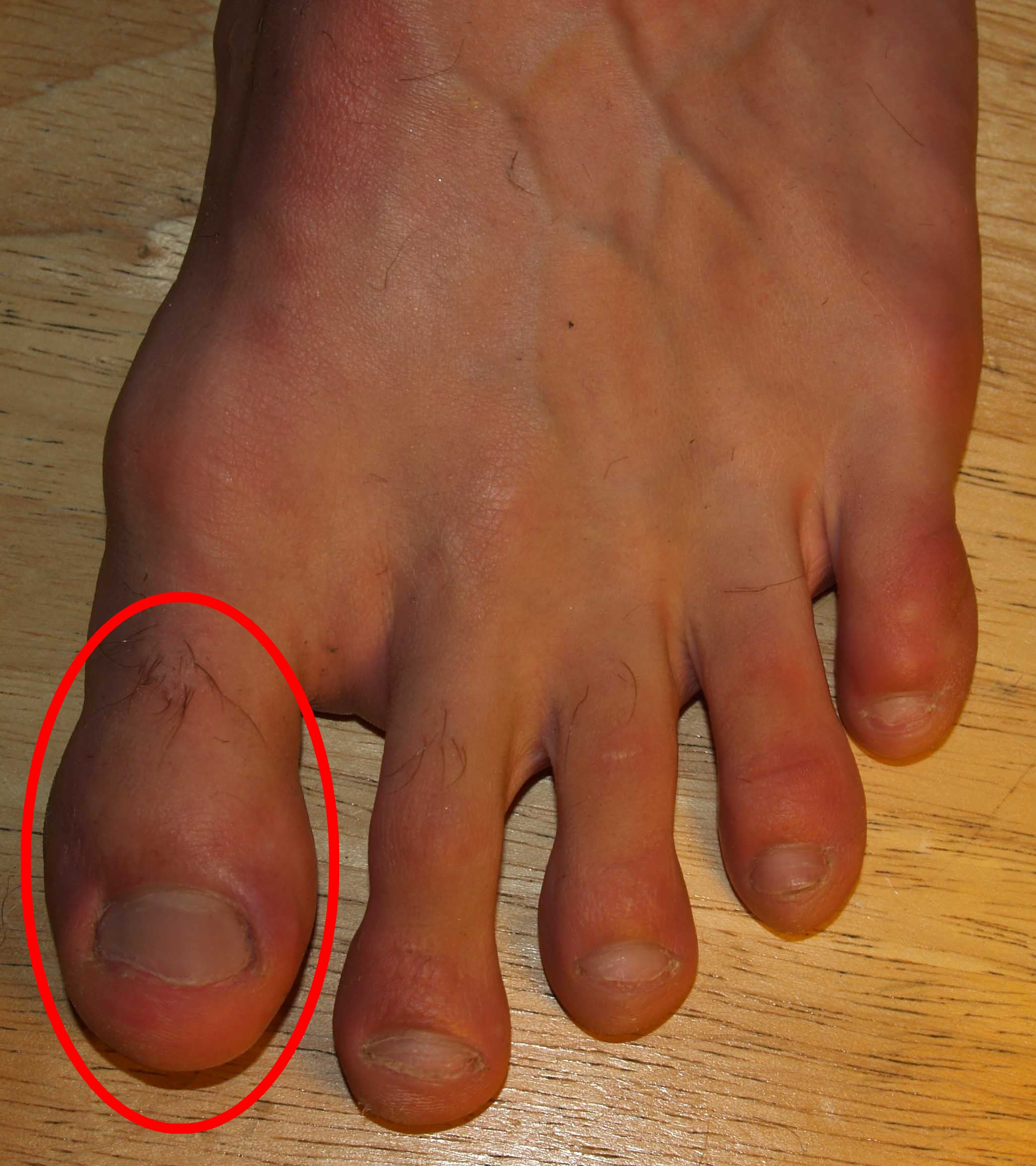 Image result for Hallux