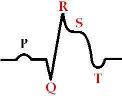 Острая стадия инфаркта миокарда