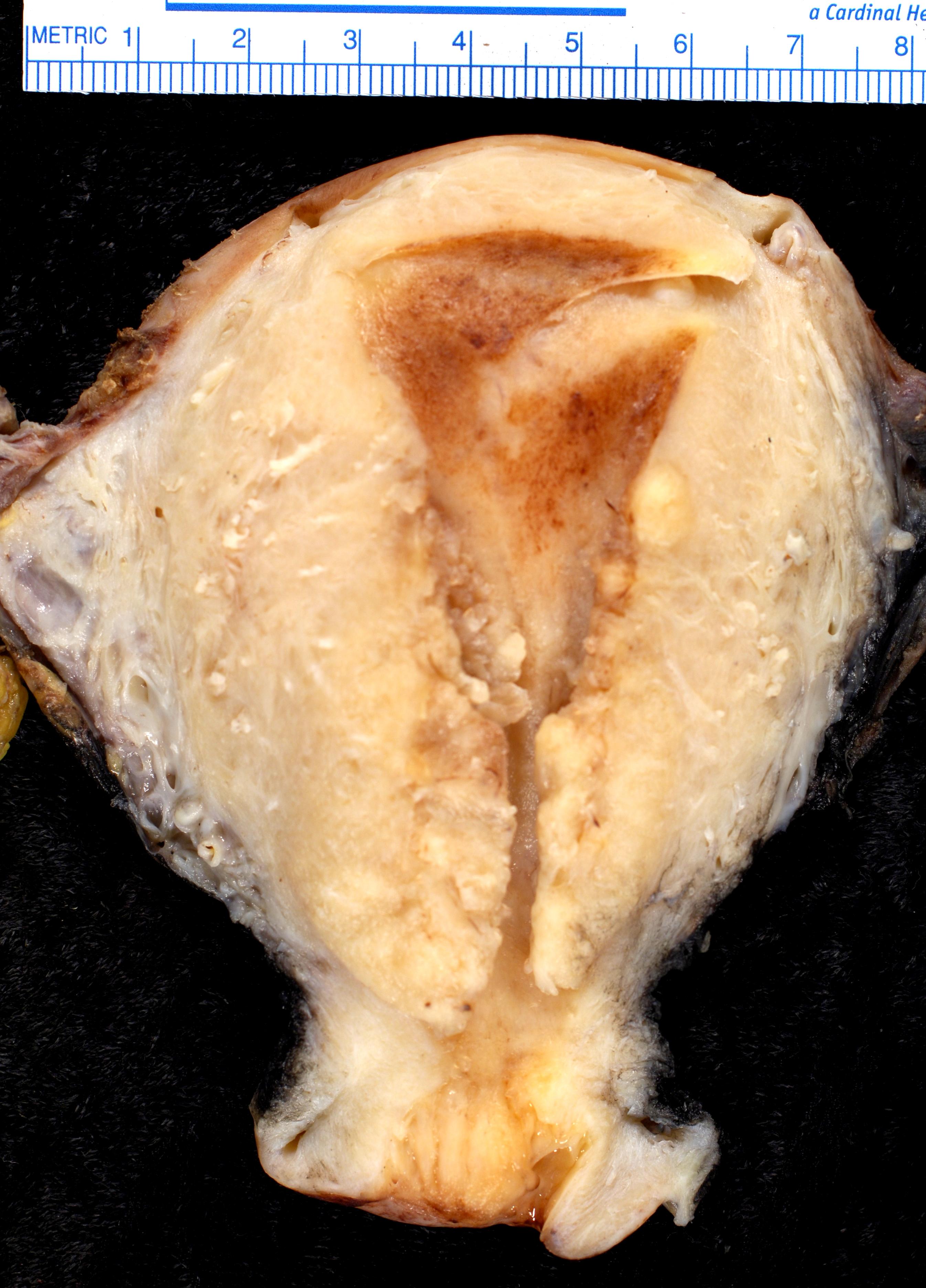 Endometrioides Adenokarzinom FIGO III mit Infiltration von etwas mehr als der Hälfte des Myometriums