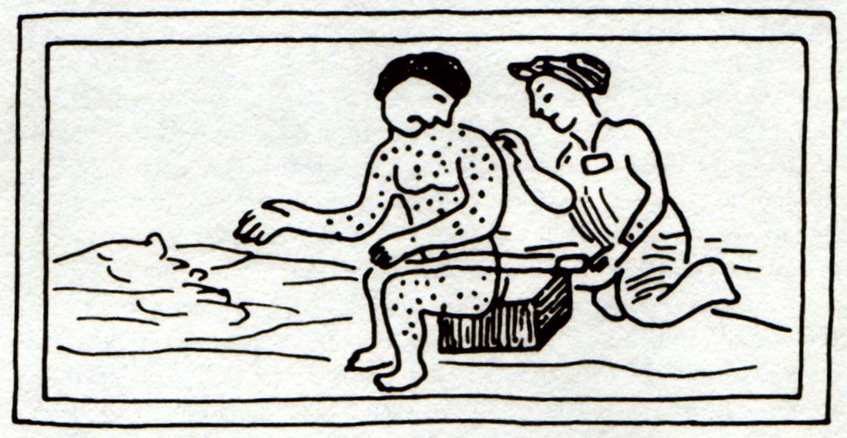 16th-centuryztecdrawingofsomeonewithmeasles