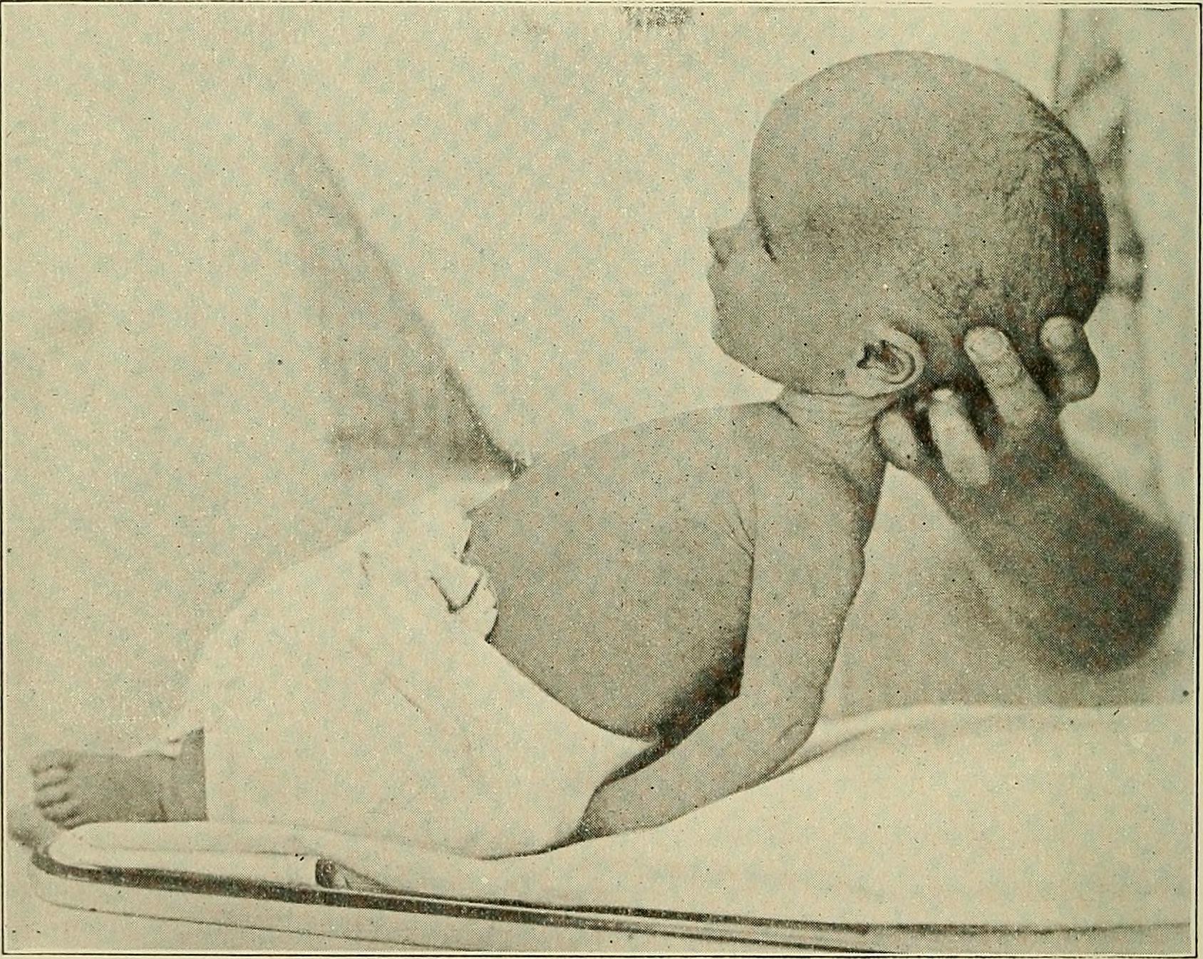 Hidrocefalia post meningitis