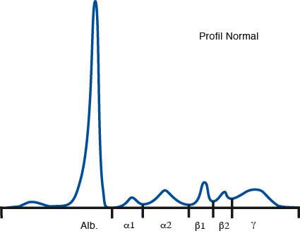 File:Spettro elettroforetico proteine plasma.jpg