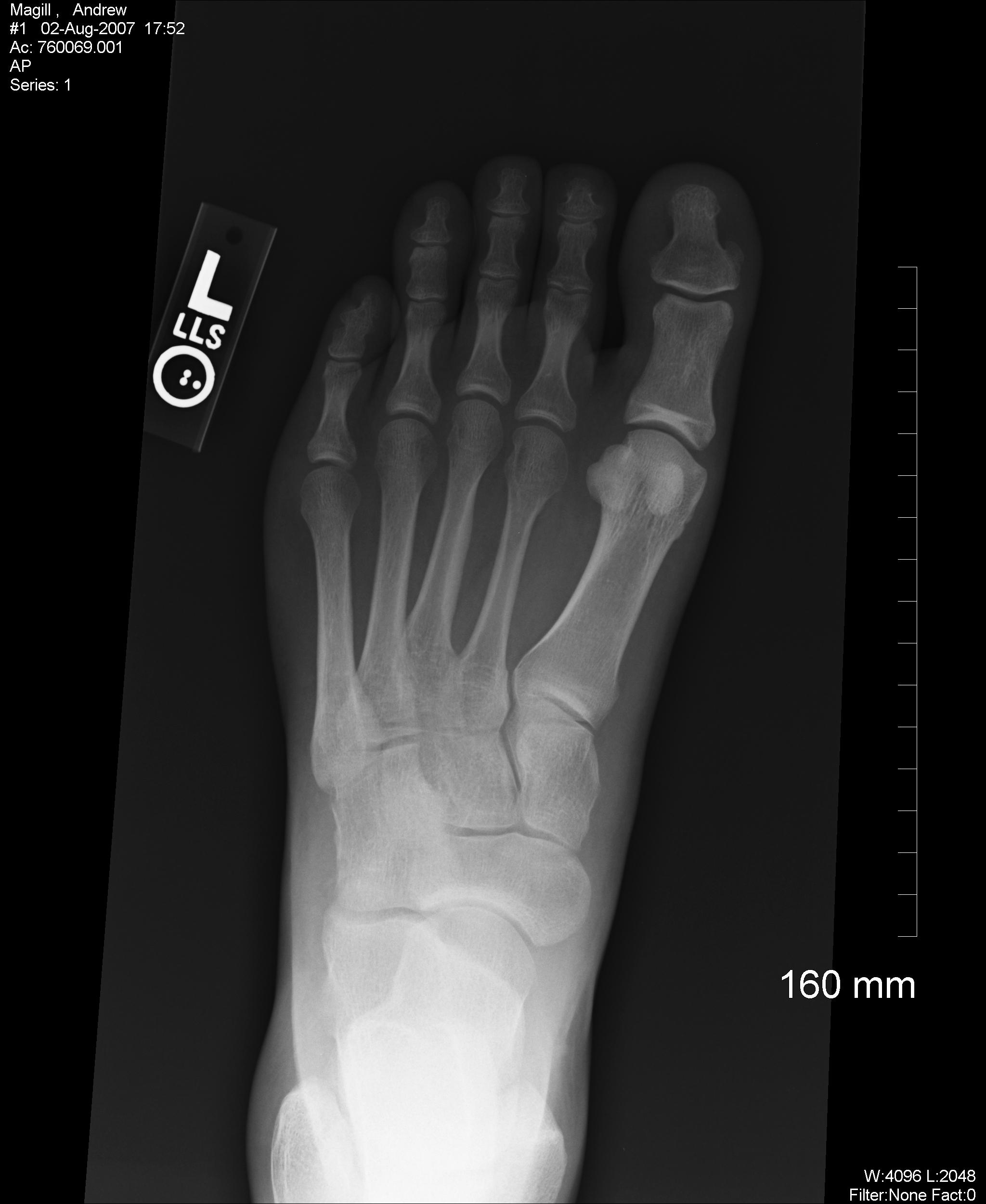 x-rays | Walthblog