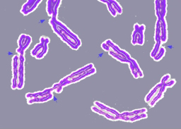 DNA damage resulting in multiple broken chromosomes