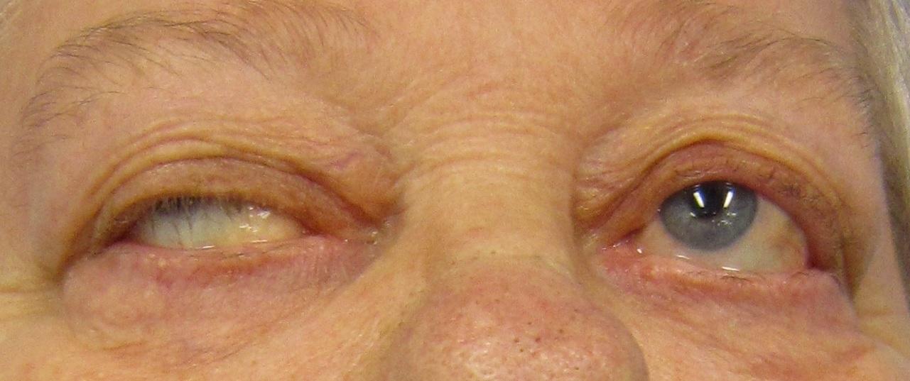 látás és myasthenia gravis igaz rövidlátás