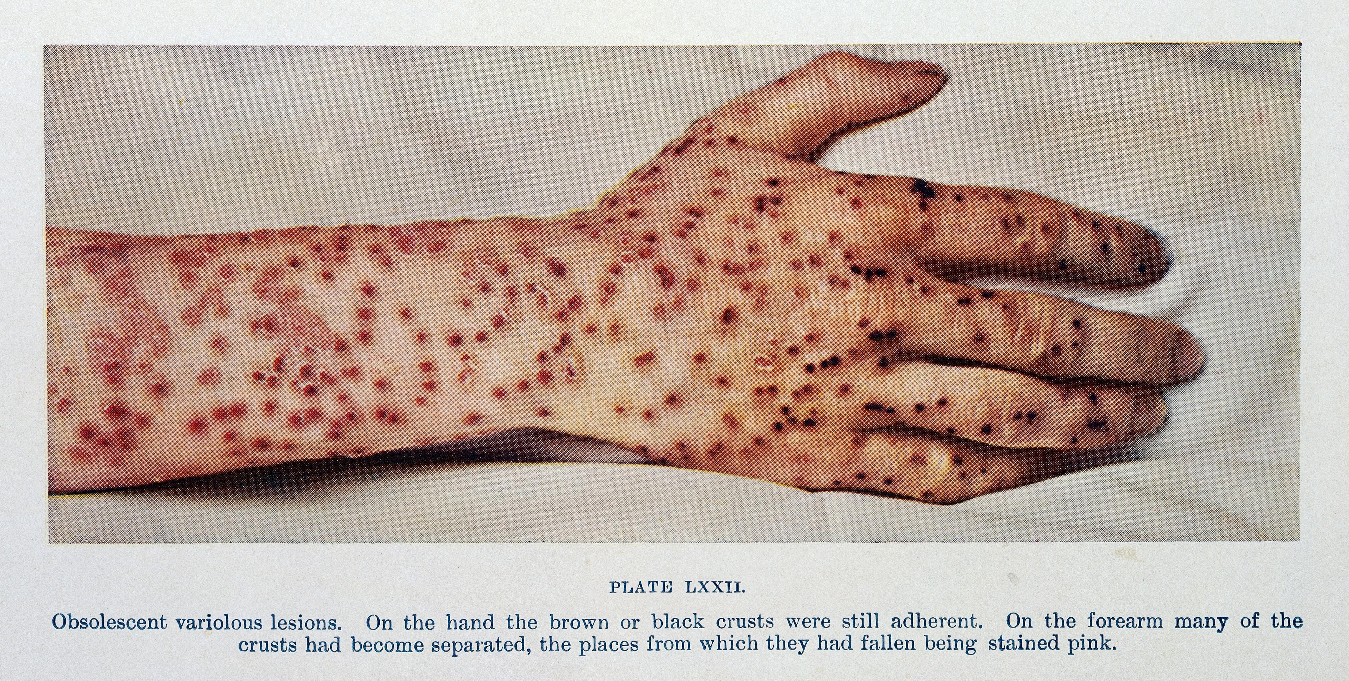 smallpox vaccine care