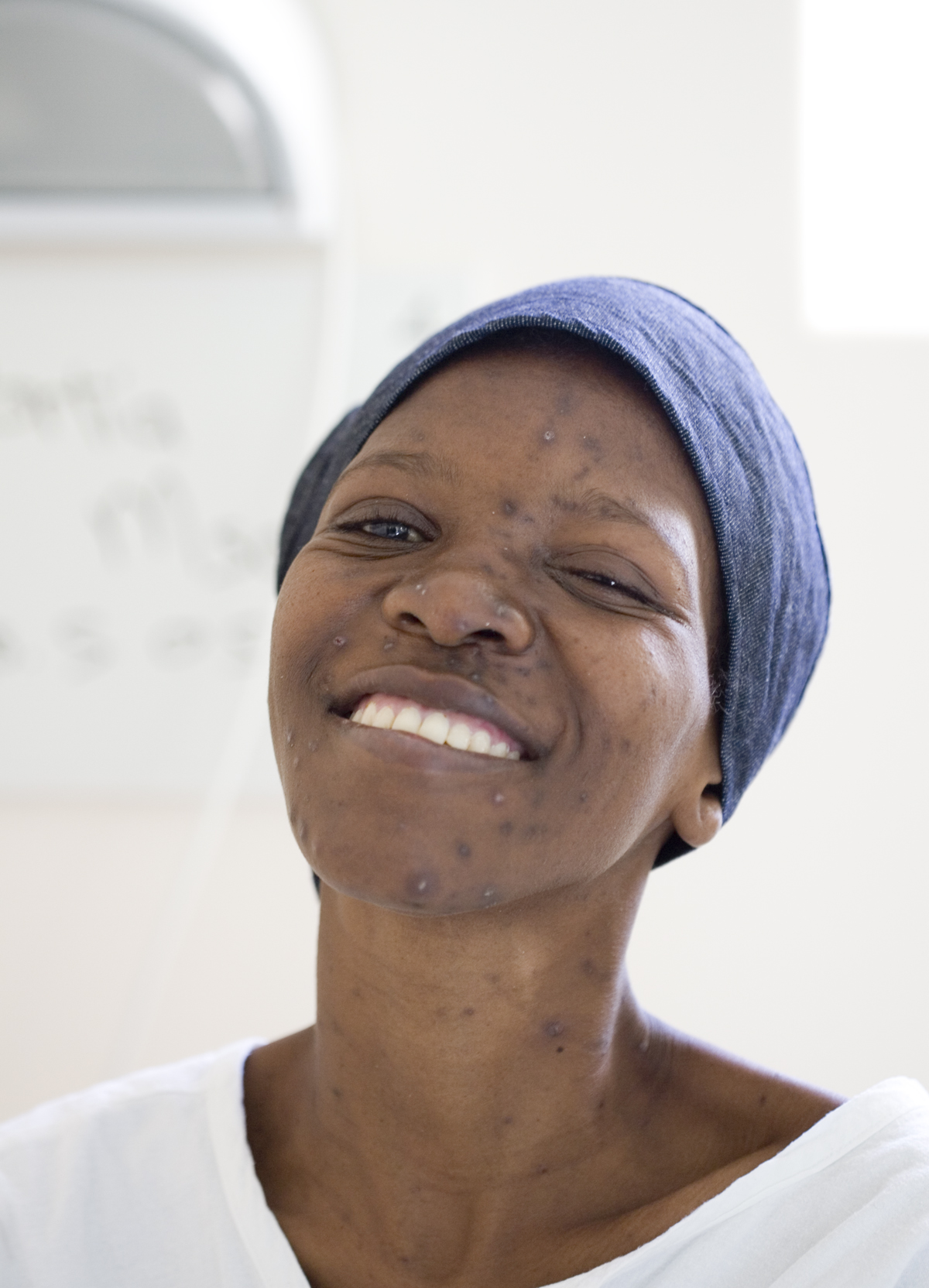 A woman living with HIV/AIDS.