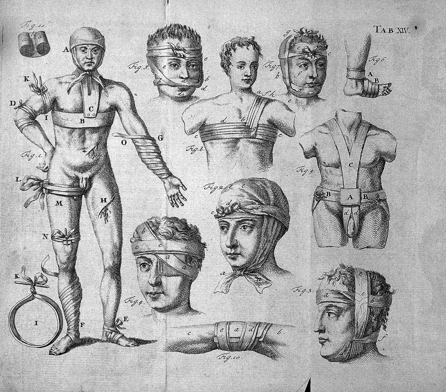 File:S. Mihles, The elements of surgery, 1764 Wellcome L0029966 ...