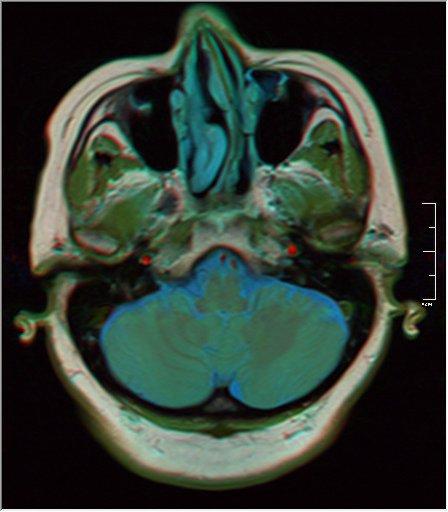 Brain MRI 0133 16.jpg