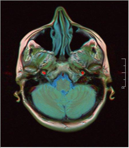 Brain MRI 0146 17.jpg