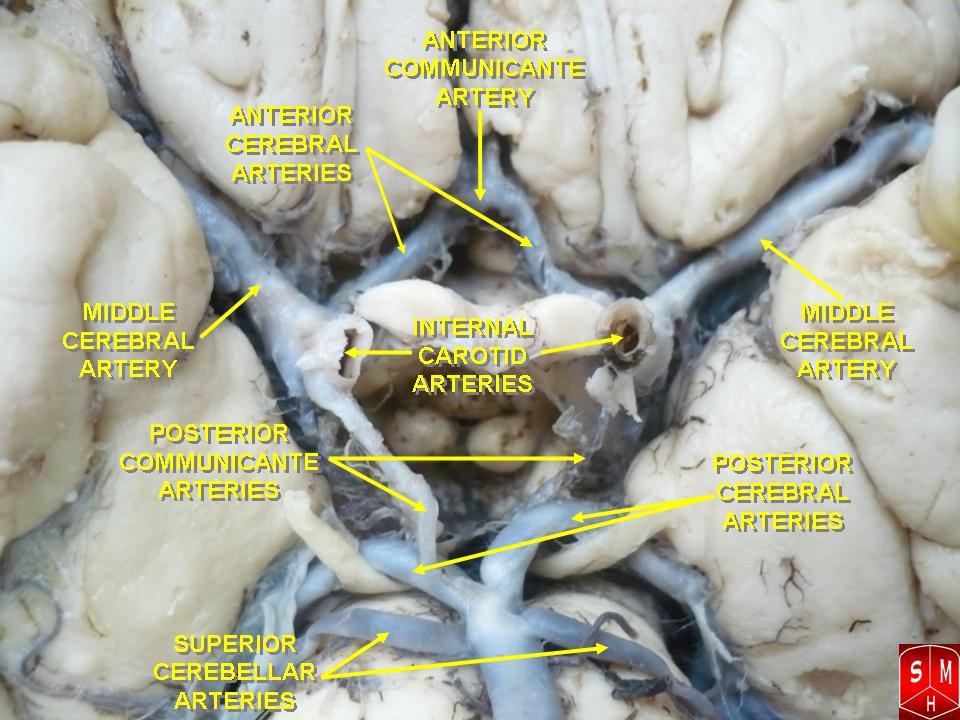 Middle cerebral artery - Wikipedia