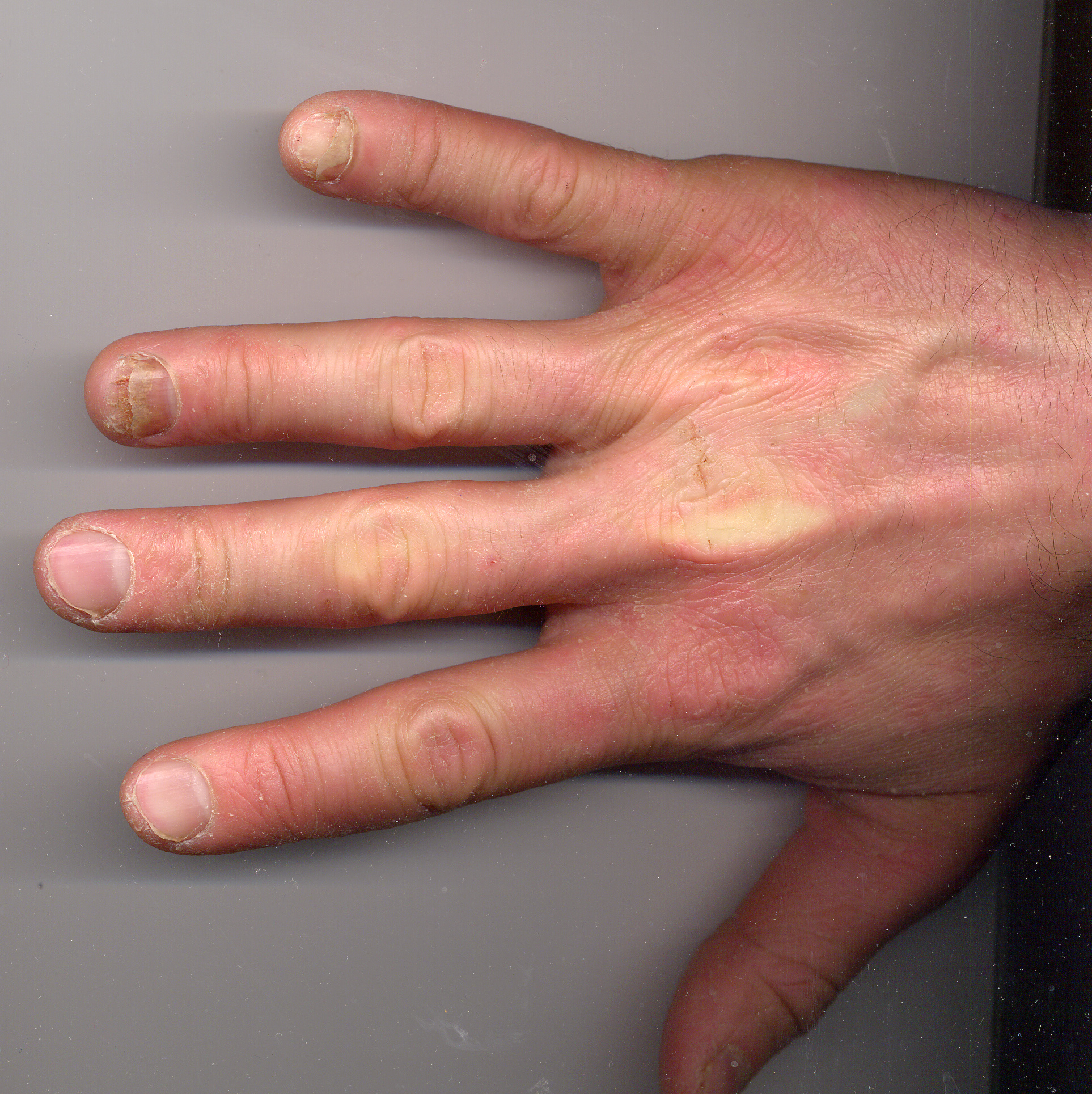 File:Onycholysis right hand 34yo male ring and little fingers non ...
