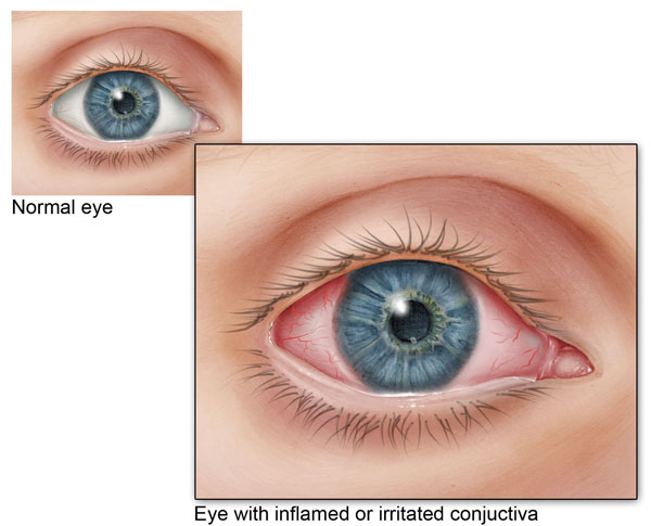 Eye doctor, normal eye, and inflamed eye graphic in Lakeland & Kissimmee, FL