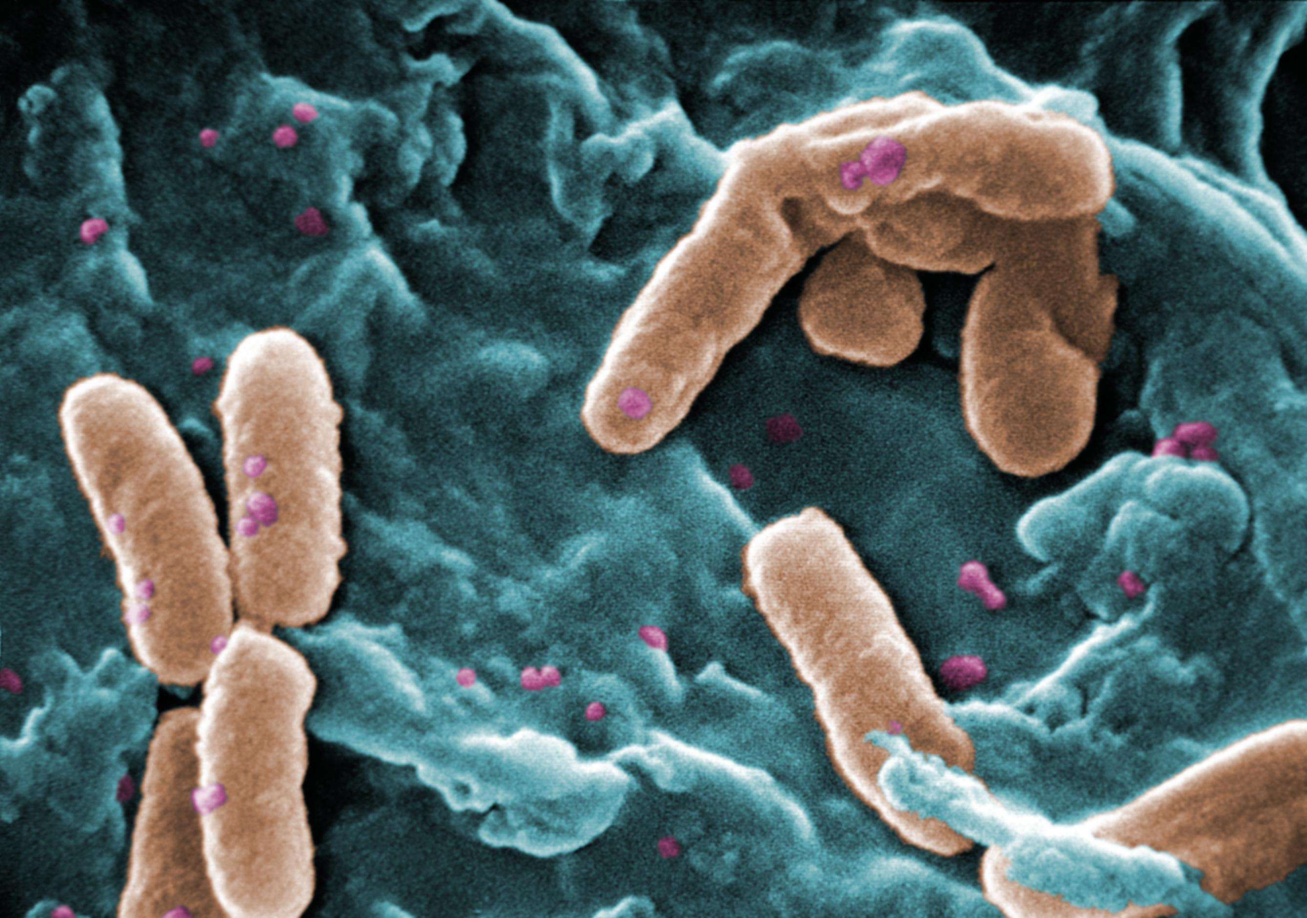 Pseudomonas aeruginosa, a bacteria species that exhibits biofilm formation