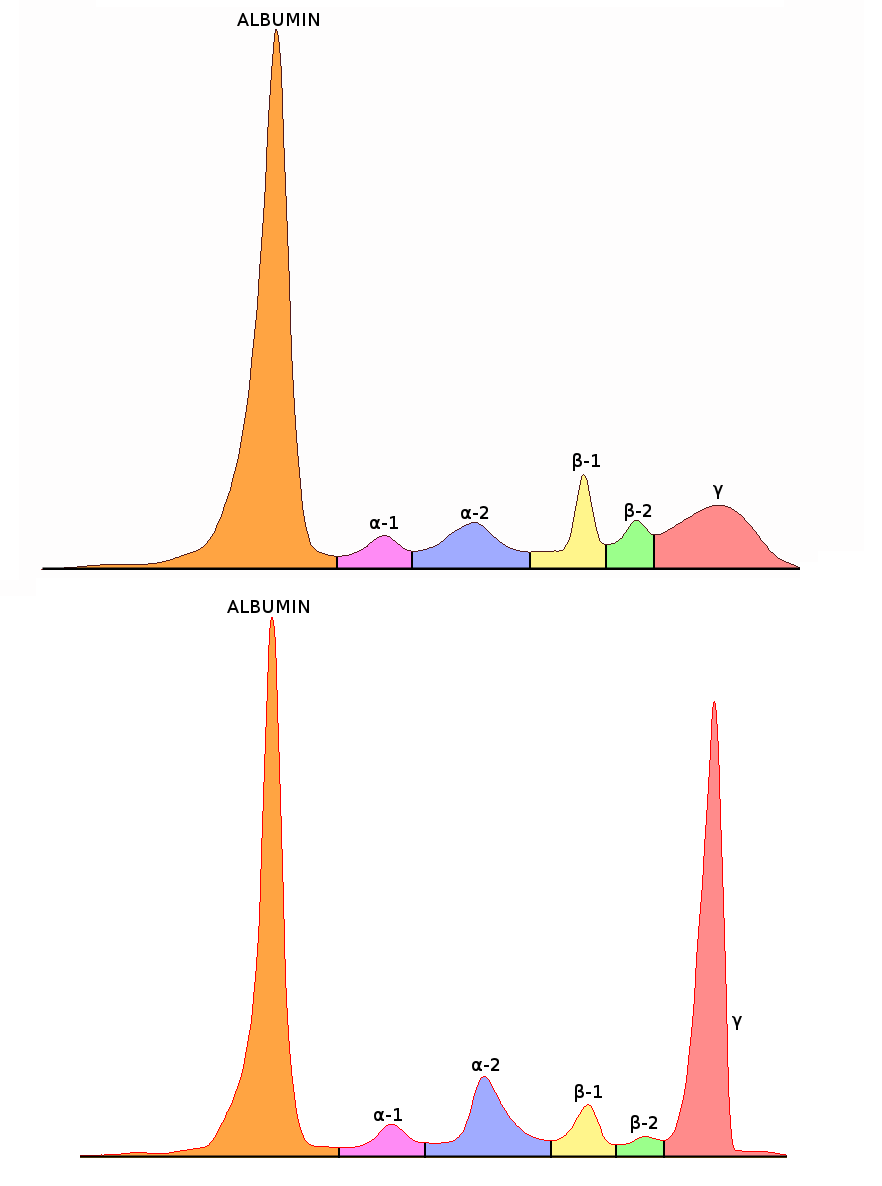 File:Serum protein electrophoresis normal and paraprotein.png ...