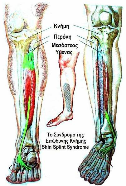 File:Shin Splint Syndrome.jpg