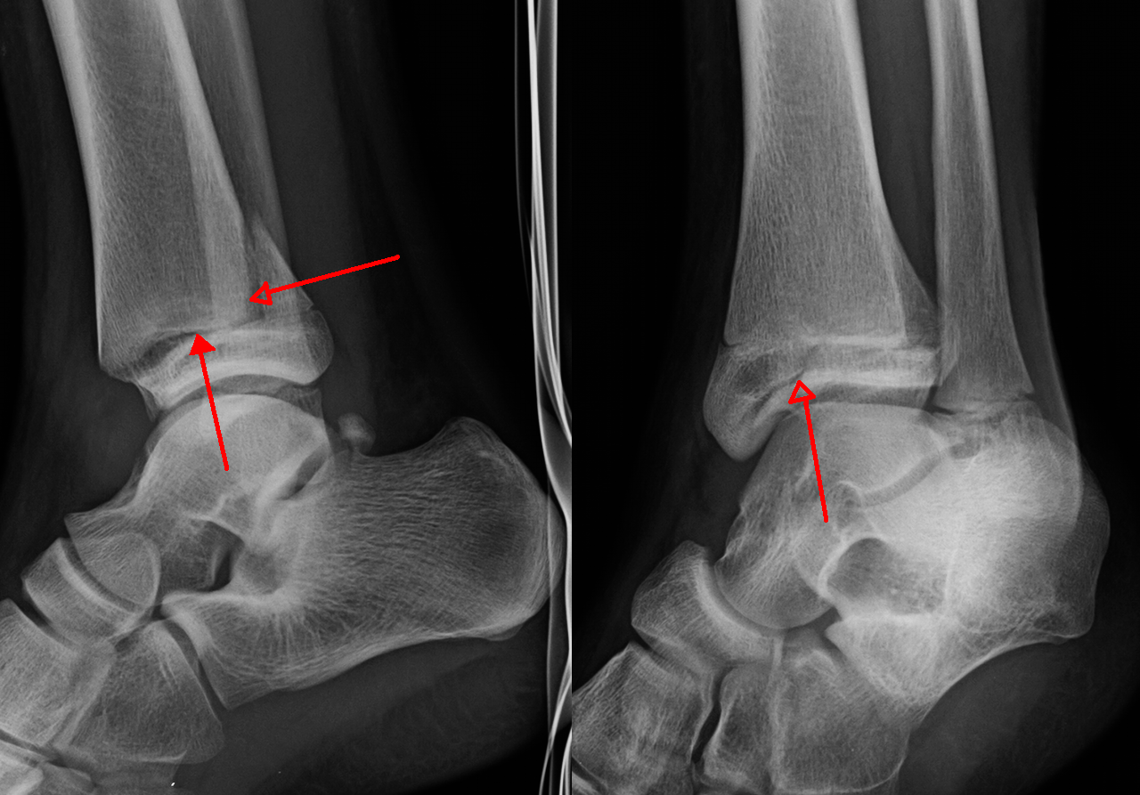Ankle fracture - Wikiwand