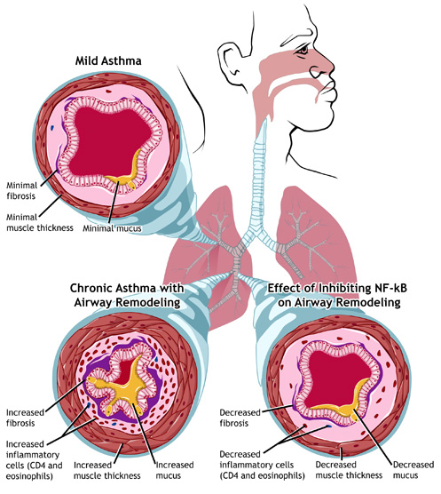 chronic asthma Asthma is a chronic condition of the lungs that has two main components two things happen inside the lungs of women suffering with asthma.
