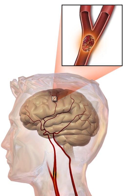 hersenen delen