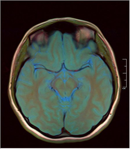 Color Brain MRI 0292 12.jpg
