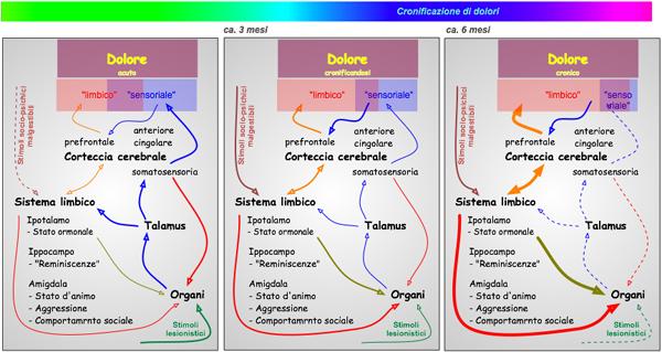 Evoluzione del dolore acuto in dolore cronico